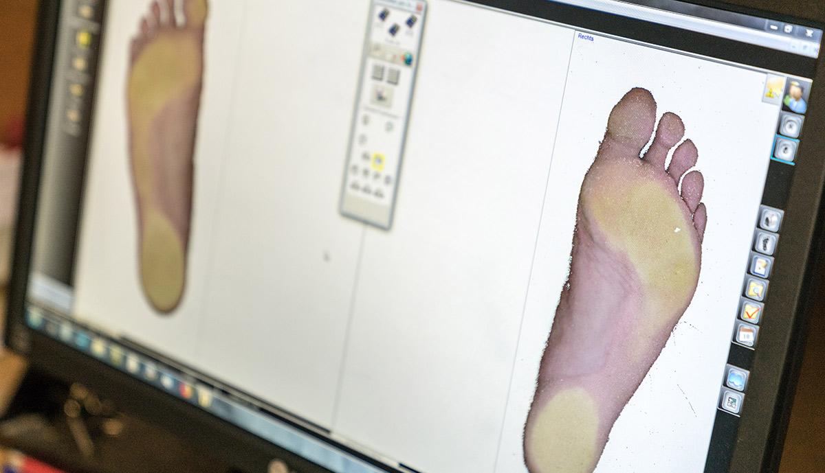 Der Fußscan wird am Computer betrachtet